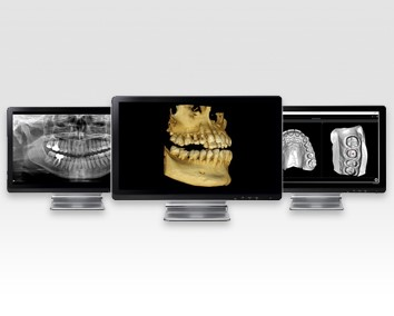 cone_beam_ct_technology_timberlake_dentistry